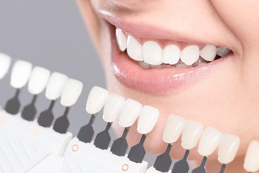 Виниры для зубов плюсы и минусы отзывы