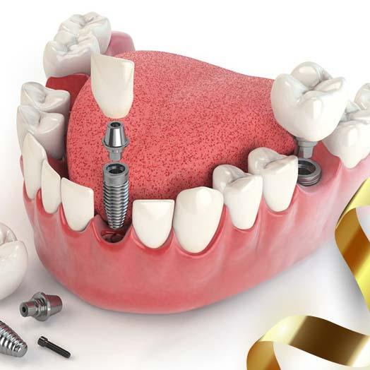 Хірургічна стоматологія 1ce4f2f004a41